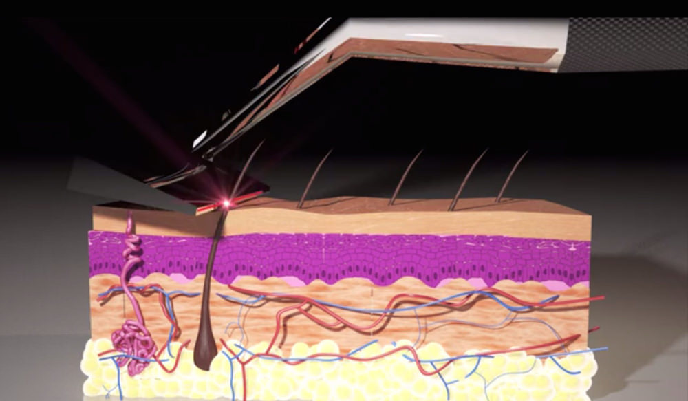 Crowdfunding : The Skarp laser razor